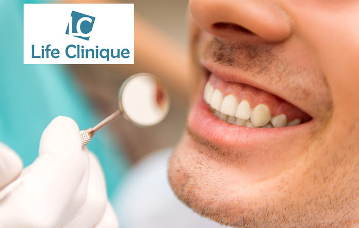 Pulizia dei denti Life Clinique